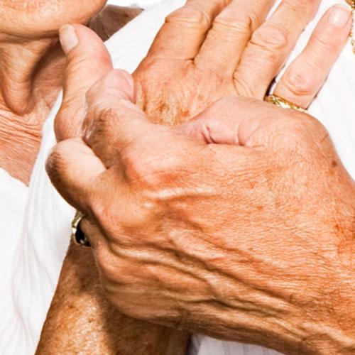 Osteopathy and Arthritis